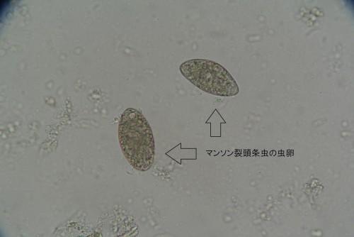 マンソン裂頭条虫卵