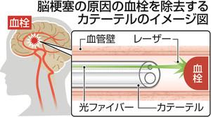 脳 血栓 レーザー